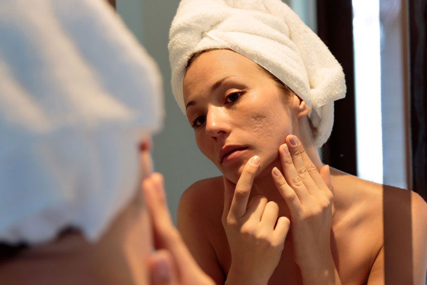 Adult Acne: Why It Occurs and What You Can Do About It