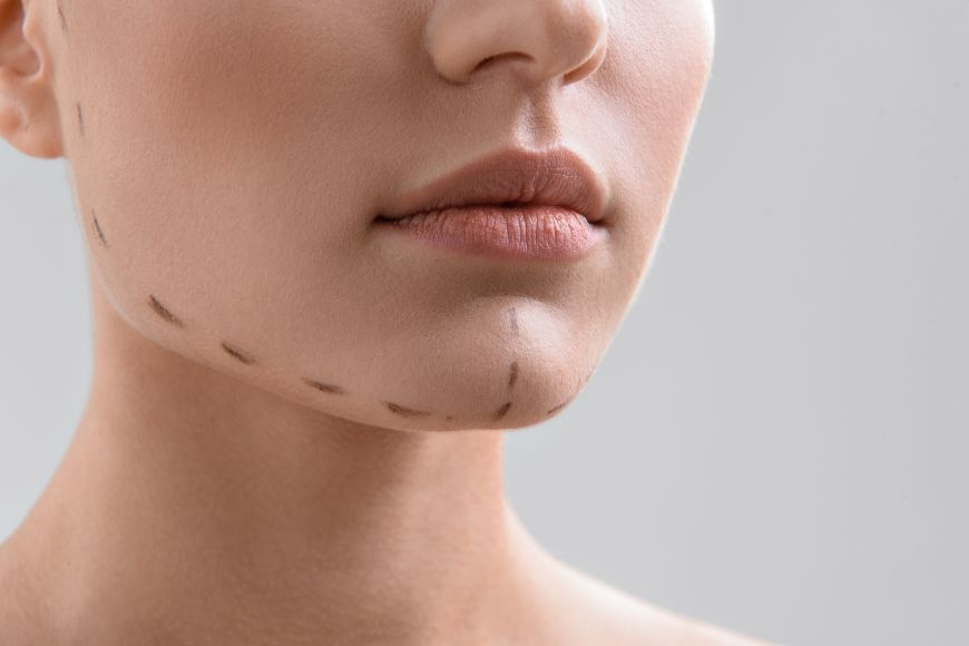 Seeing double? Say Goodbye to Your double Chin with Laser Lipo