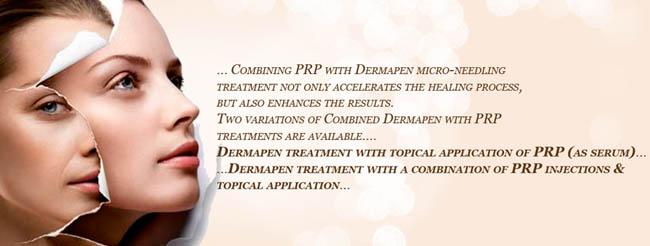 Dermapen Micro-Needling with PRP