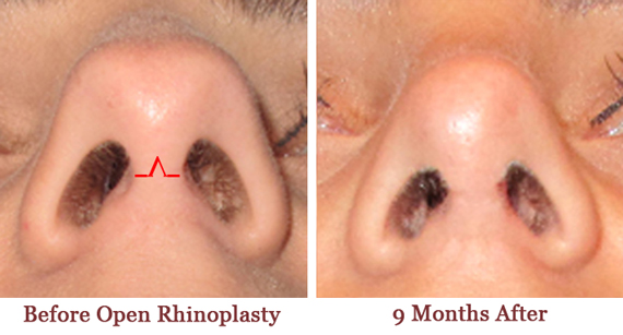 Rhinoplasty elite plastic cosmetic surgery 3