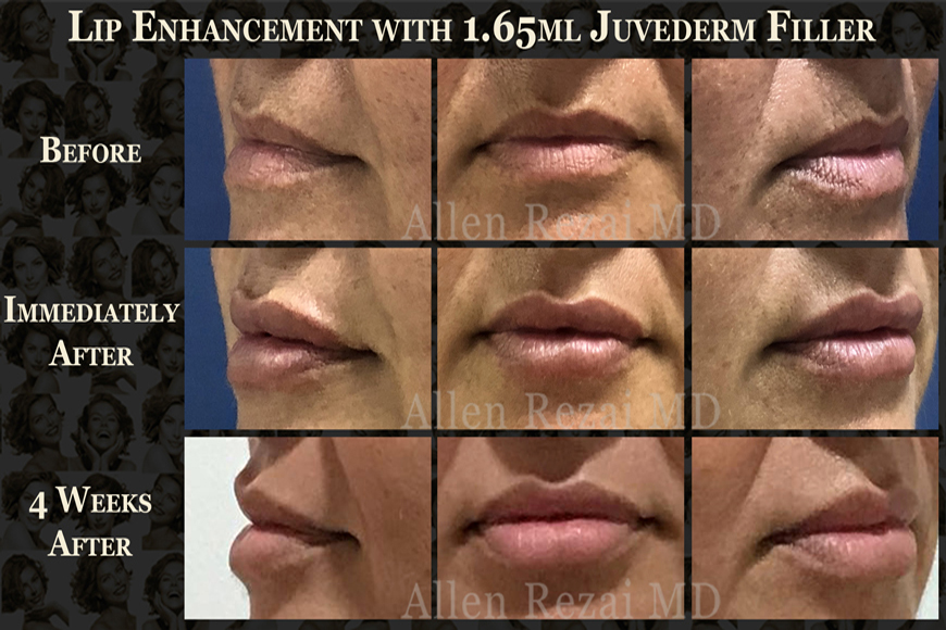Lip fillers at Elite plastic and cosmetic surgery group