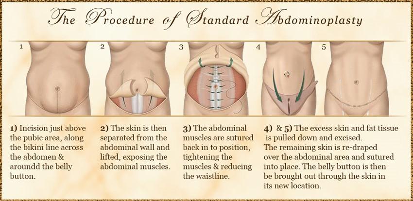 Abdominoplasty Procedures