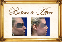 Patient Testimonials Elite Plastic and Cosmetic Surgery Group