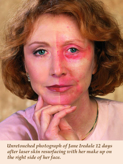 Rejuvenating Skin Care Entirely Without Surgery | ExpatWoman com