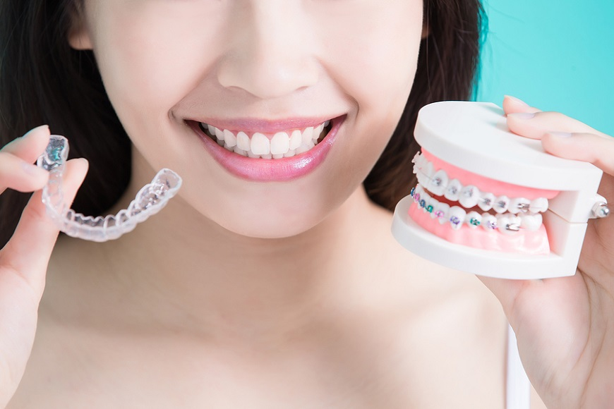 The Benefits of Invisalign Over Traditional Braces