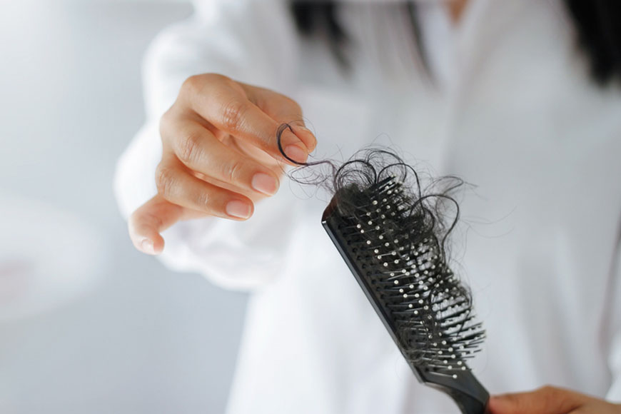 Special offers for hair loss in Dubai
