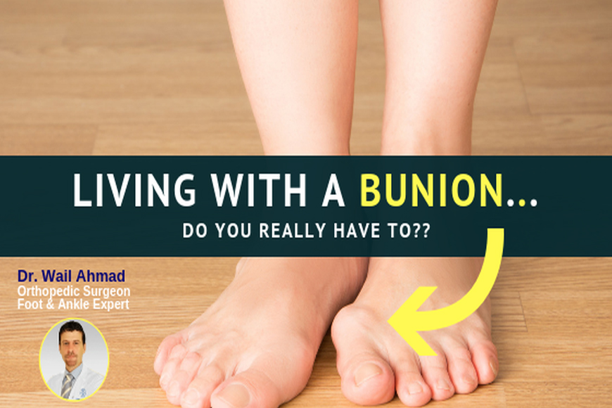 Living with a Bunion...Do You Really Have To?
