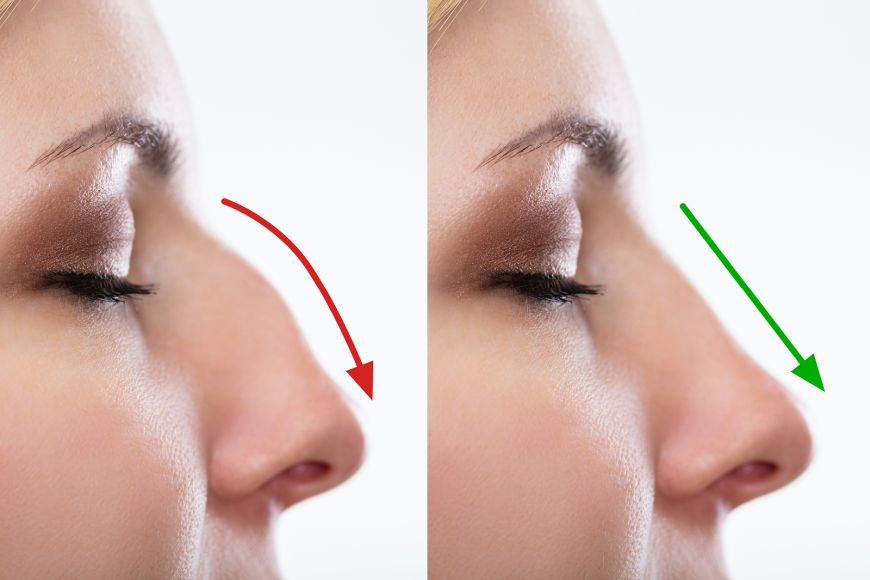 Non-surgical nose job in Dubai at Aesthetica Clinic