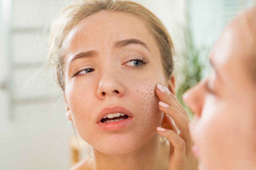 Most Common Dubai Skin Problems