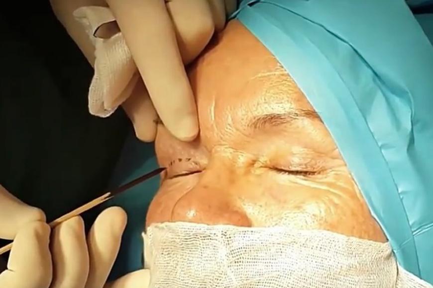 Blepharoplasty in Dubai
