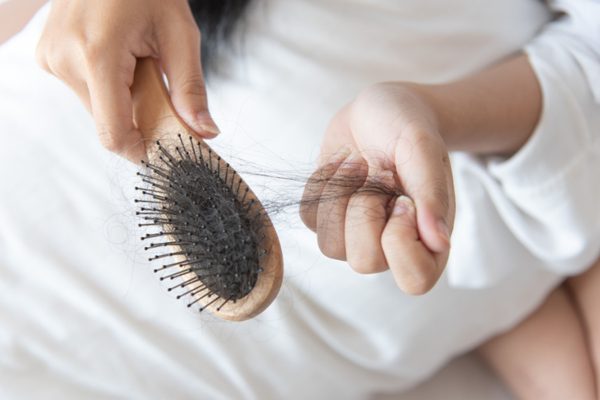 Hair Loss in Dubai: When Should You See a Doctor?