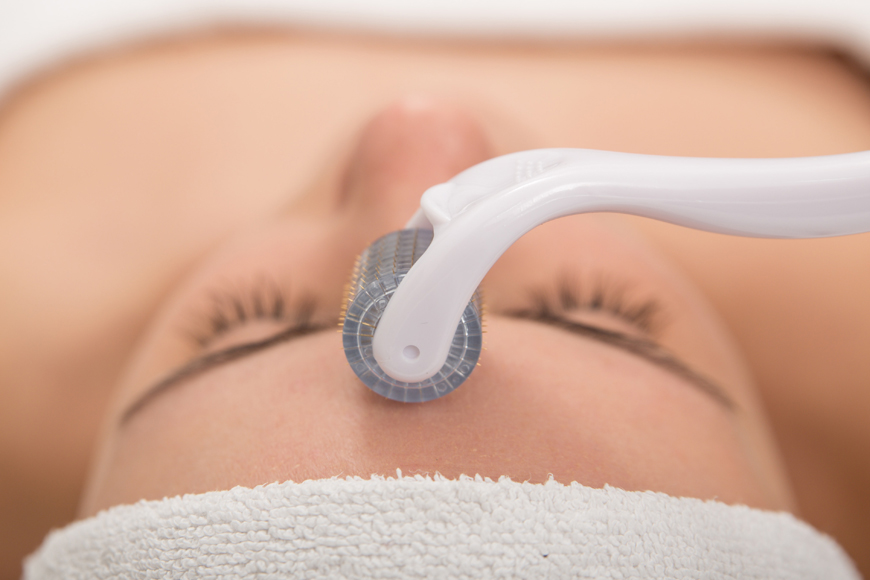 Micro-needling patches at home
