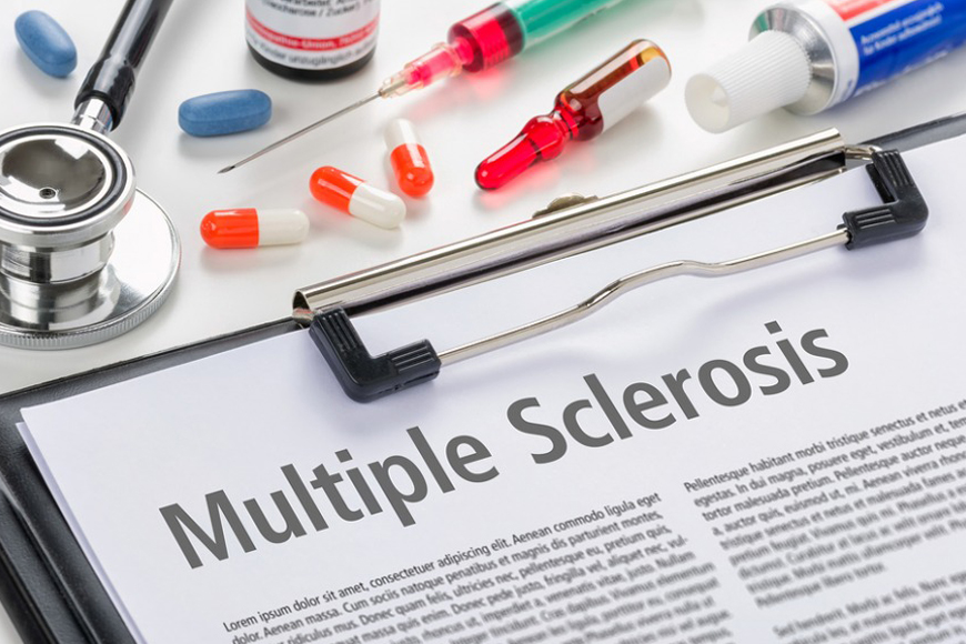 About Multiple Sclerosis (MS)