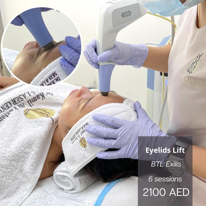 Dr. Kamil Al Rustom Skin and Laser Centre eyes treatment