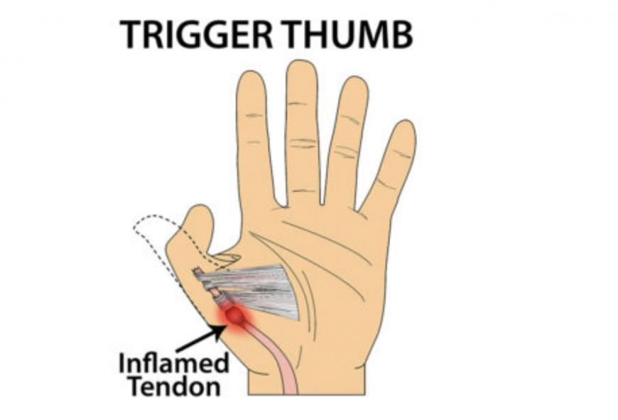 Trigger thumb