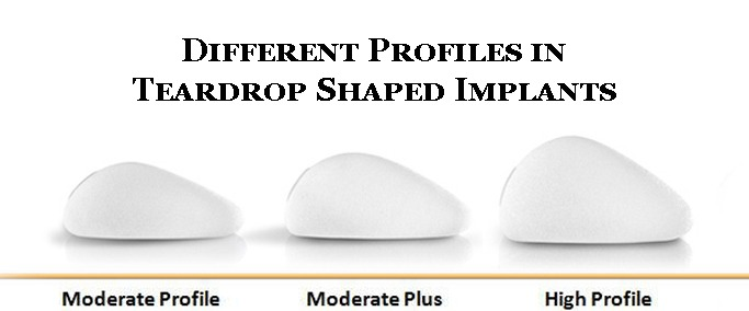 Different Profiles in Teardrop Shaped Implants