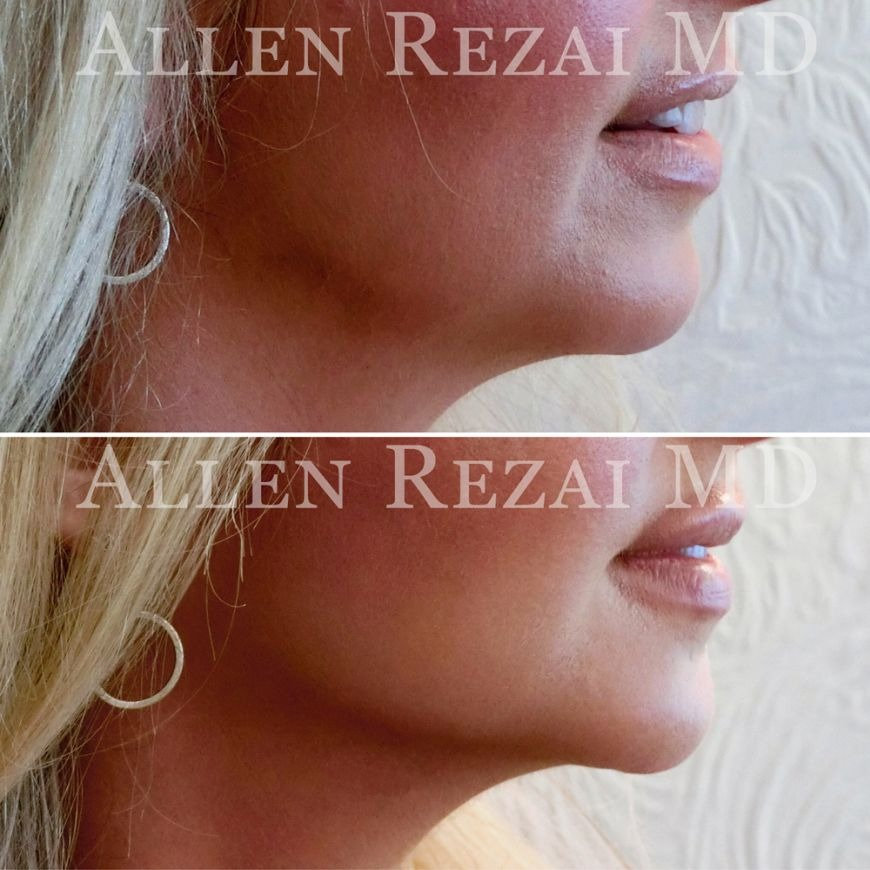 Chin implant surgery at Elite Plastic