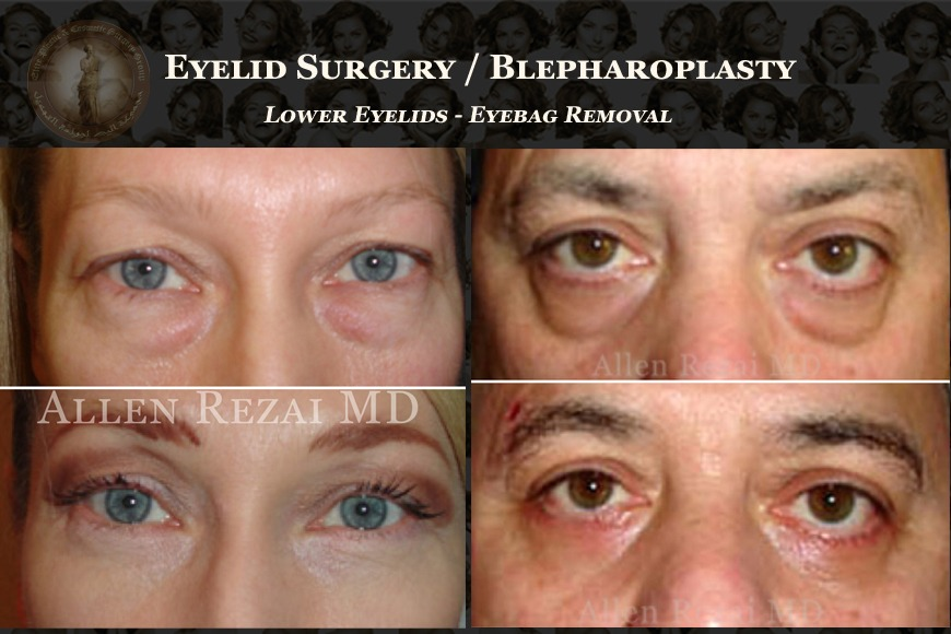 Read This If You're Considering Blepharoplasty in Dubai