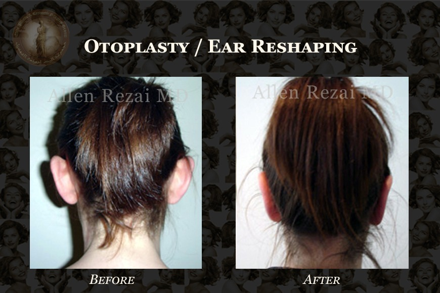 5 Things You Should Know When Considering Otoplasty