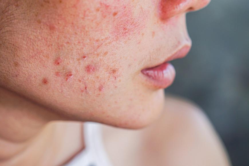 Best acne scars treatment in Dubai