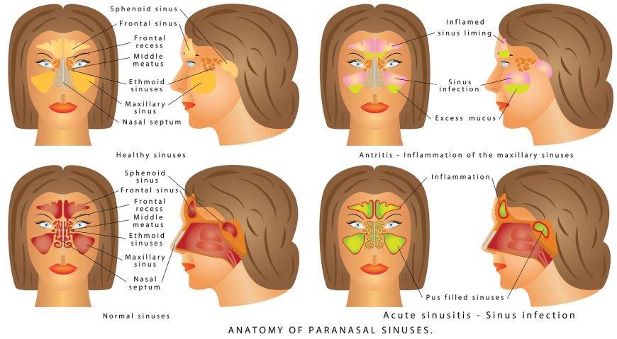 Sinusitis is an inflammation