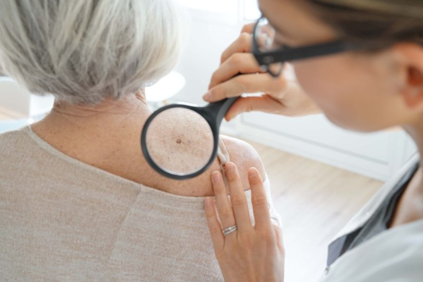 Enhancing Skin Cancer Diagnosis with Dermatoscopy