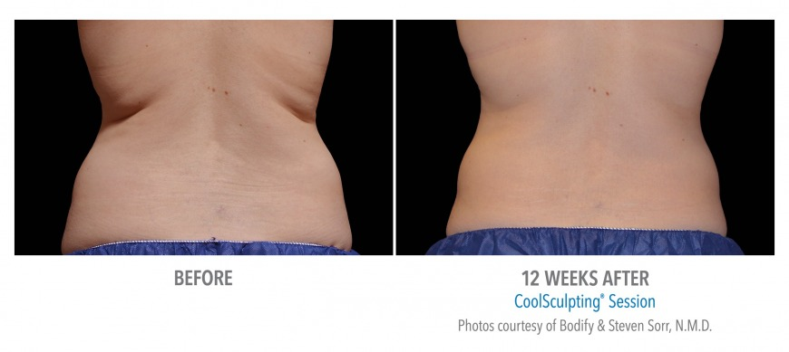 CoolSculpting treatment in Dubai for fat reduction