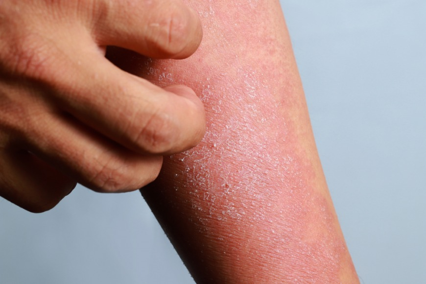 Eczema treatment in Dubai