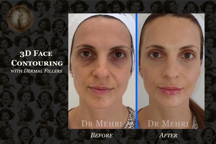 3D Face Contouring Before and After