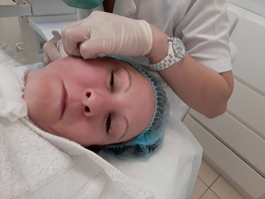 Pre treatment Facial on day 7
