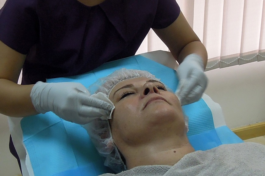 Time for Botox!