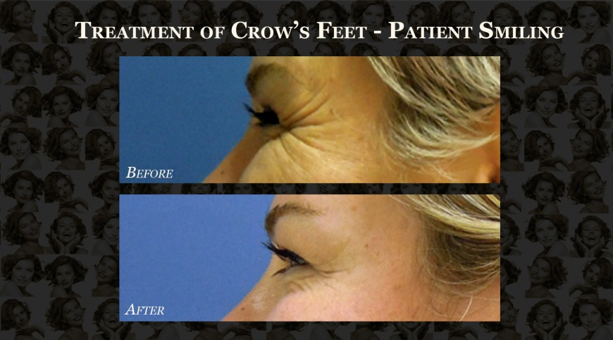 Before and After: Crow's Feet