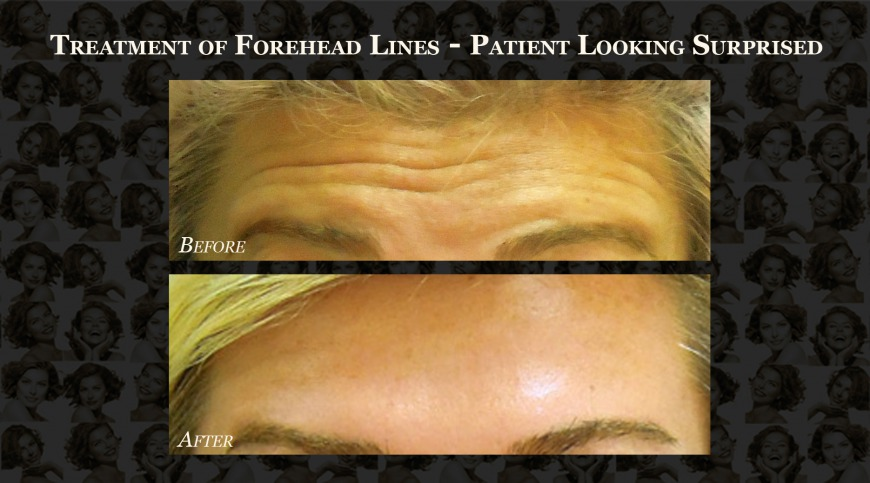Before and After: Forehead lines