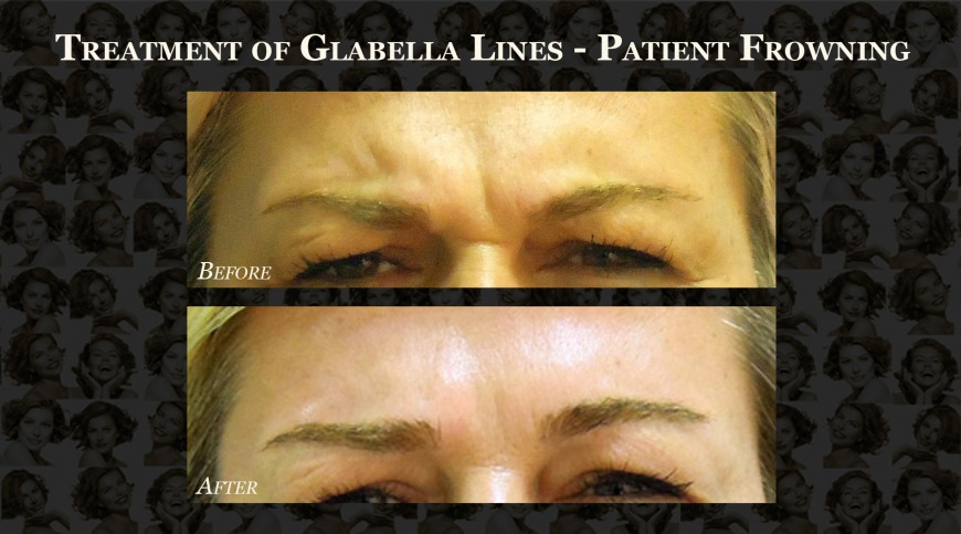 Before and After: Glabella