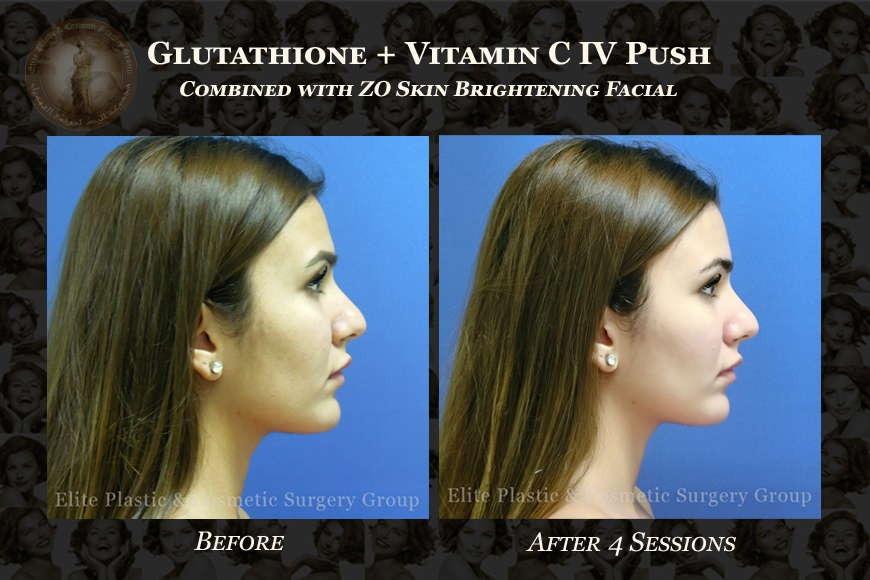 Glutathione Treatment