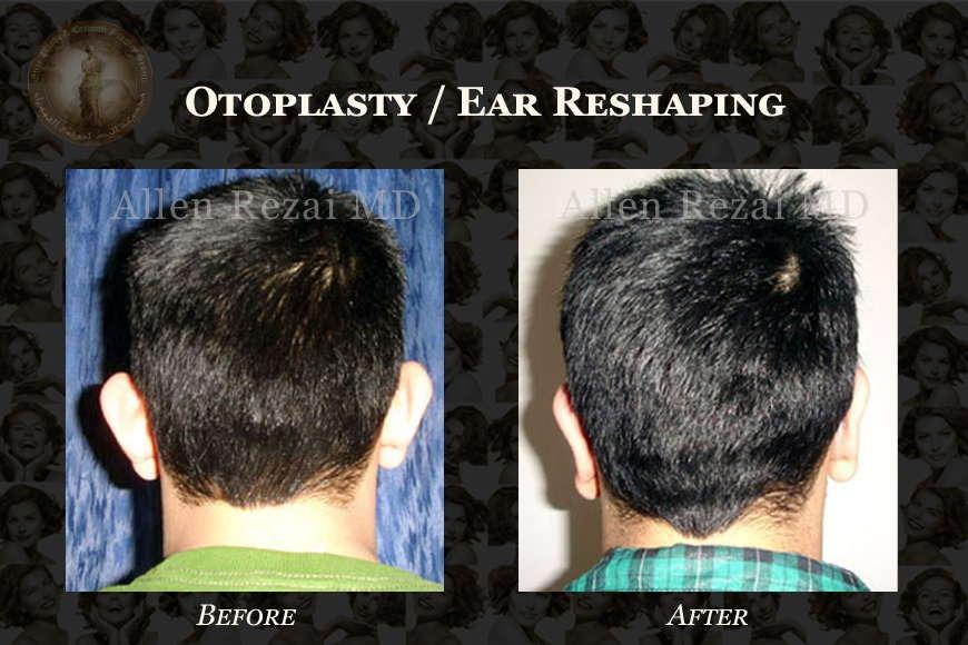 Otoplasty / Ear Reshaping