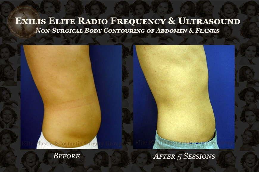Radio Frequency & Ultrasound Body Sculpting