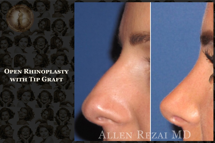 Rhinoplasty in Dubai | Elite Plastic & Cosmetic Surgery Group
