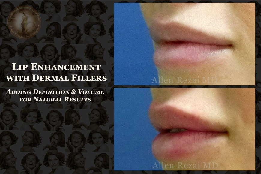 Lip Enhancement