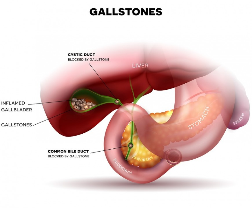 How You Can Recognise and Manage Gallbladder Disease in Dubai