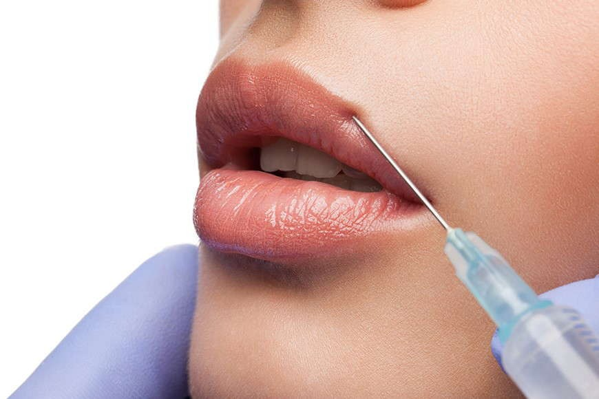 What is Hyaluronic Acid (HA) Filler?