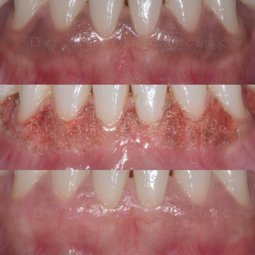 Gum Depigmentation in Dubai | ConfiDent Dubai Palm