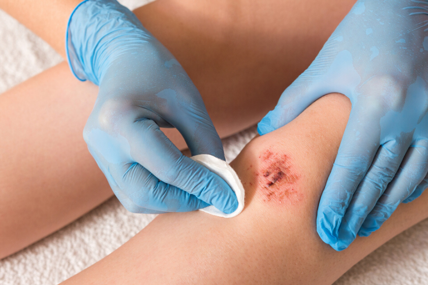 Get the Facts About Flesh-Eating Disease in Dubai