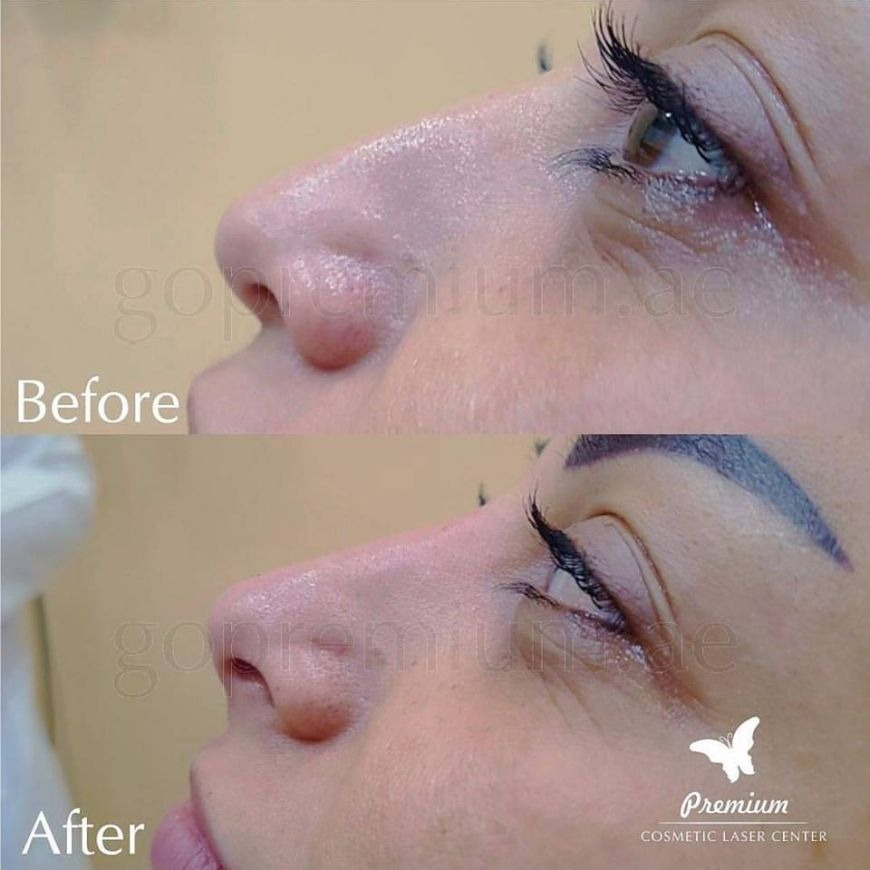 Non-Surgical Nose Job in Dubai: Procedure, Treatment & Recovery