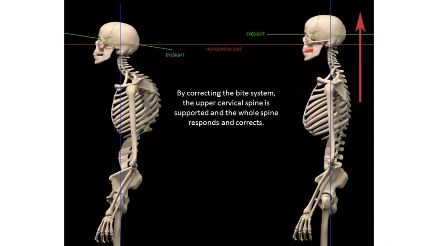 Teeth and posture at ConfiDent Dental