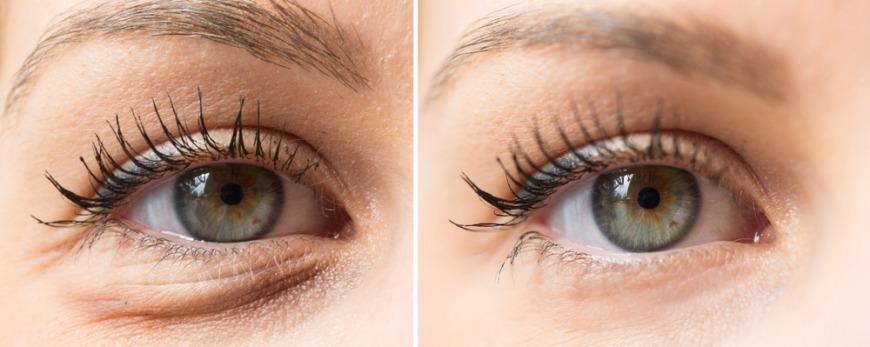 Under eye filler with free oxygen facial Dubai
