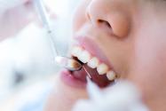 Teeth whitening products on Amazon.ae