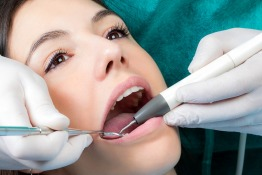 Review: Dental Cleaning and Polishing at Drs. Nicolas & Asp