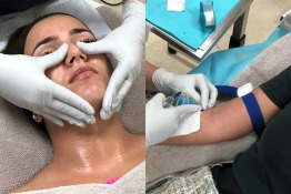 Get Glowing Skin with Glutathione IV and ZO Facials in Dubai