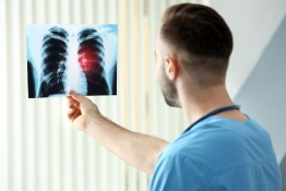 Lung Cancer Therapy and Insurance Options in Dubai
